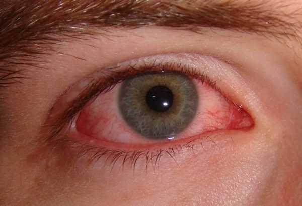 Чем вылечить глаза от сварки в домашних условиях 244